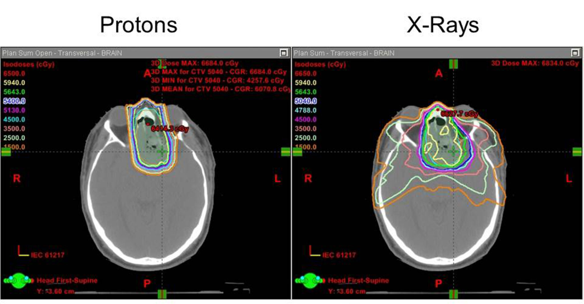 These images show a treatment plan for a patient with a paranasal sinus tumor. The image on the left shows margins for compact proton beam therapy.  The image on the right shows margins for traditional radiation therapy.
