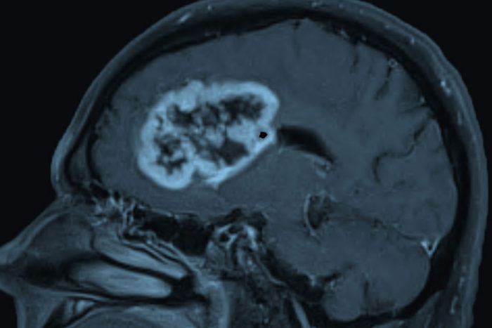 Glioblastoma, shown above, is the most common and deadly form of brain cancer in adults. New research at Washington University School of Medicine in St. Louis shows that glioblastoma patients with a protein called oncostatin M receptor on their tumors face a particularly poor prognosis, suggesting that treatments that target the protein could improve survival.