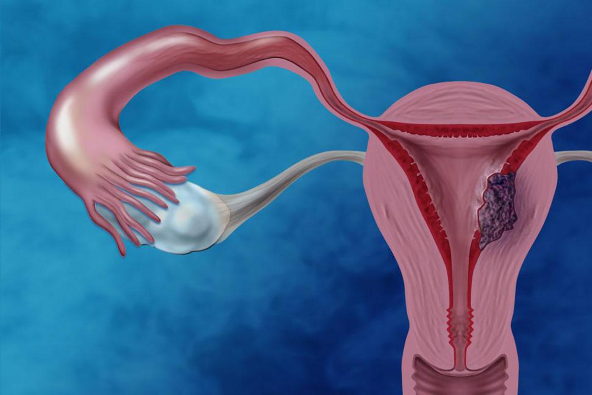 Endometrialcancerillustration