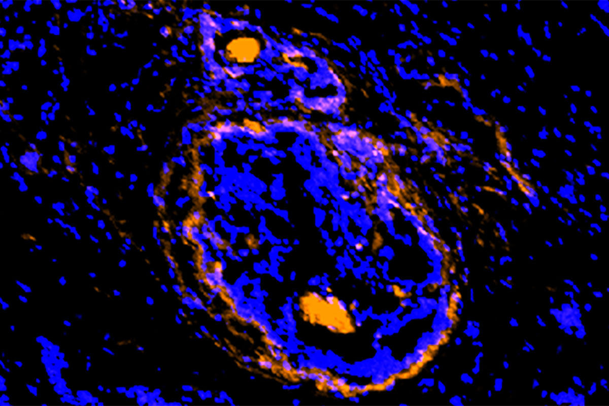 A new imaging agent, developed at Washington University School of Medicine in St. Louis, illuminates cancerous cells of a breast tumor. The new agent lights up cancer cells and the supporting cells that act as a shield, protecting the tumor from various treatment strategies. The new investigational agent is being tested in small clinical trials.