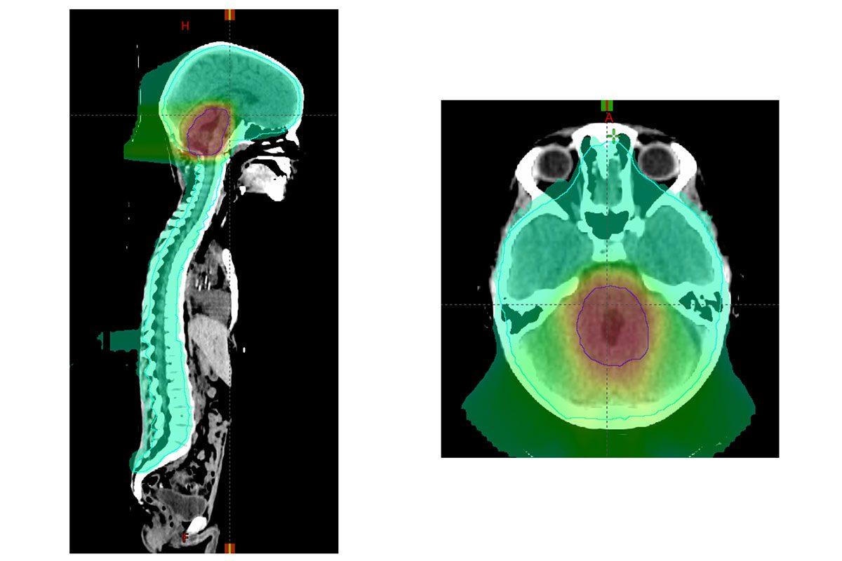 pediatric-brain-cancer-tumor