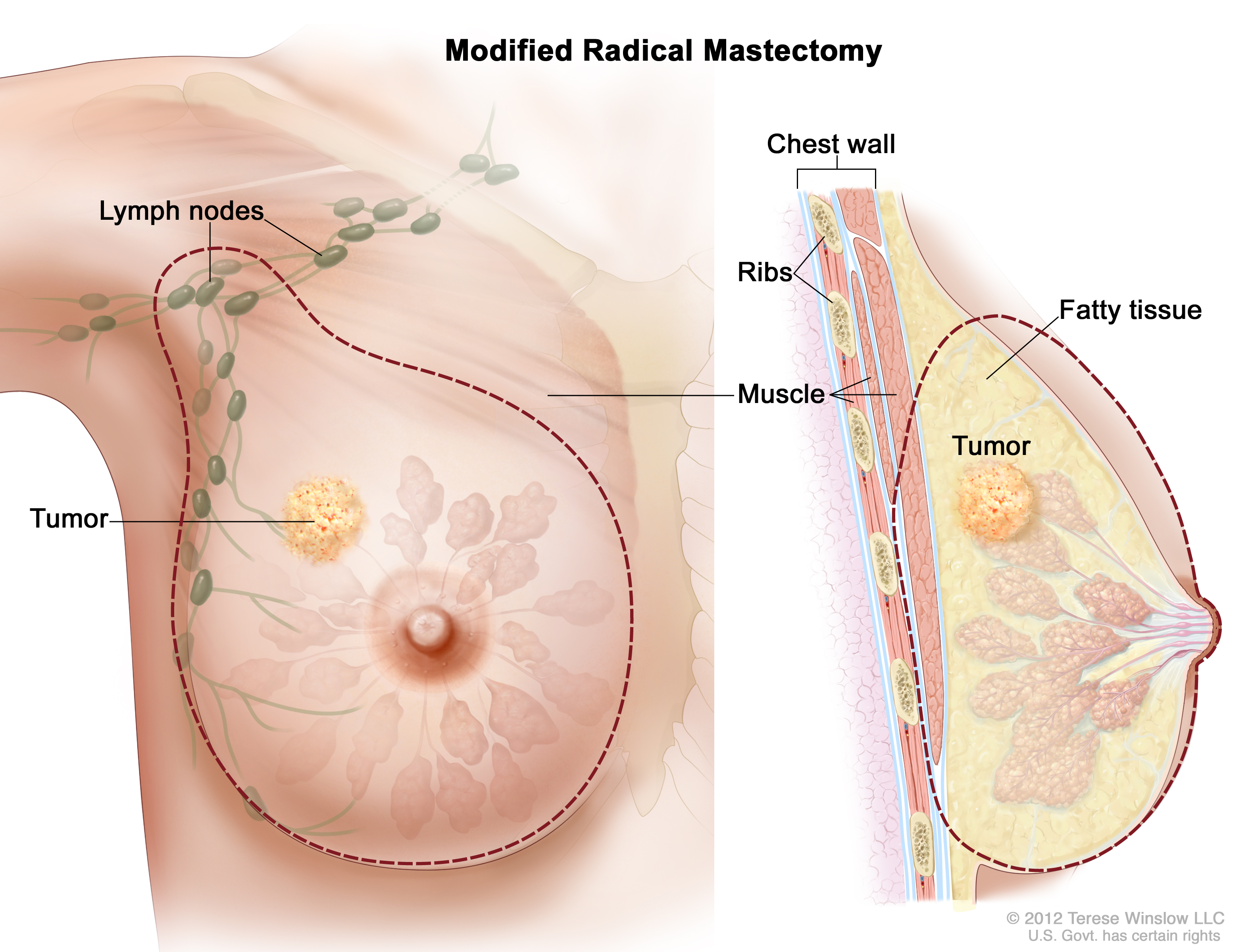The dotted line shows where the entire breast and some lymph nodes are  removed. Part of the chest wall muscle may also be removed.