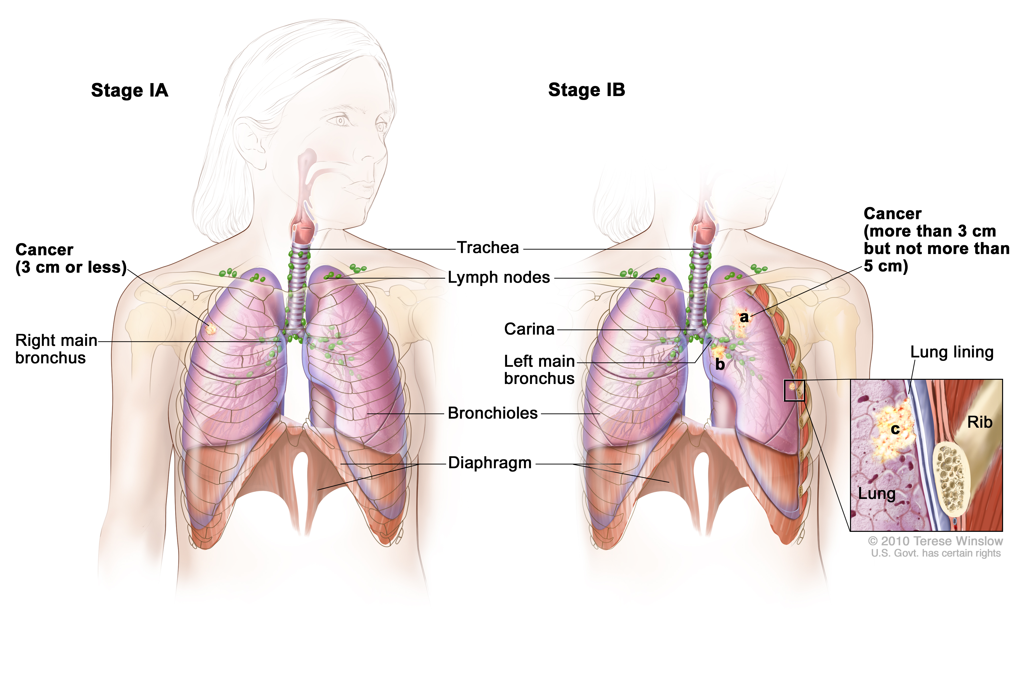 Non Small Cell Lung Cancer Treatment Pdq Health Professionals