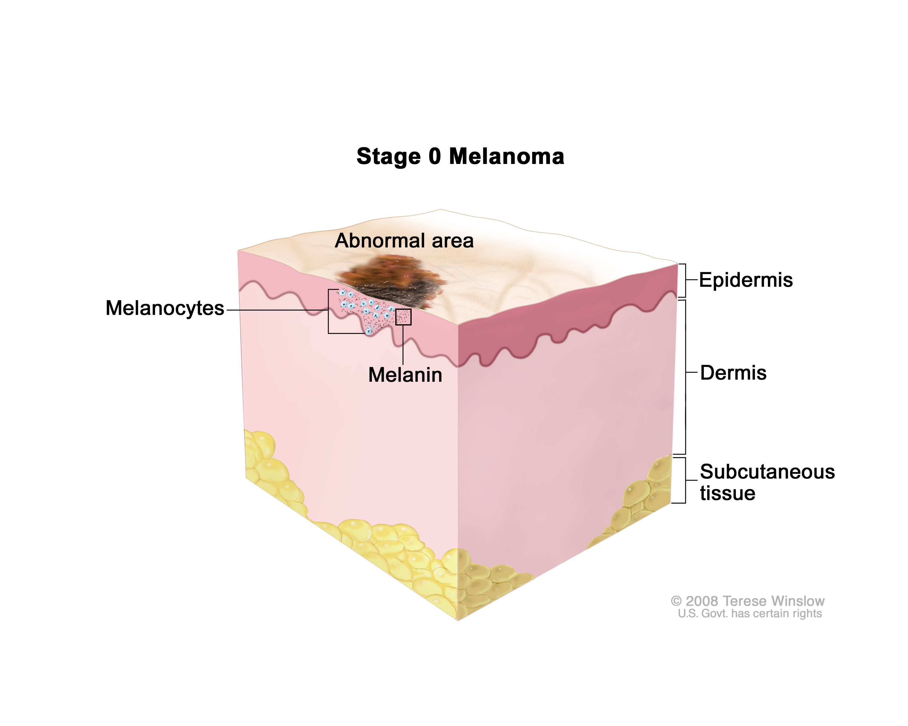 Watch Melanoma Stages: Defining How Advanced It Is video
