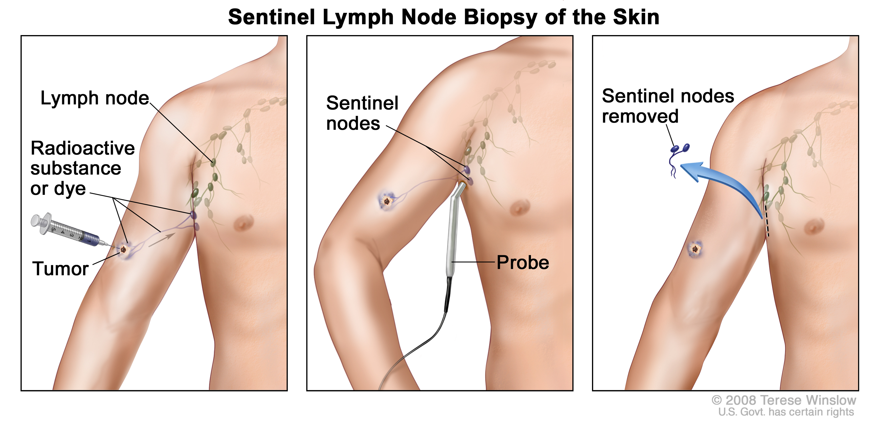 Sentinel lymph node biopsy patient siteman cancer center ccuart Gallery