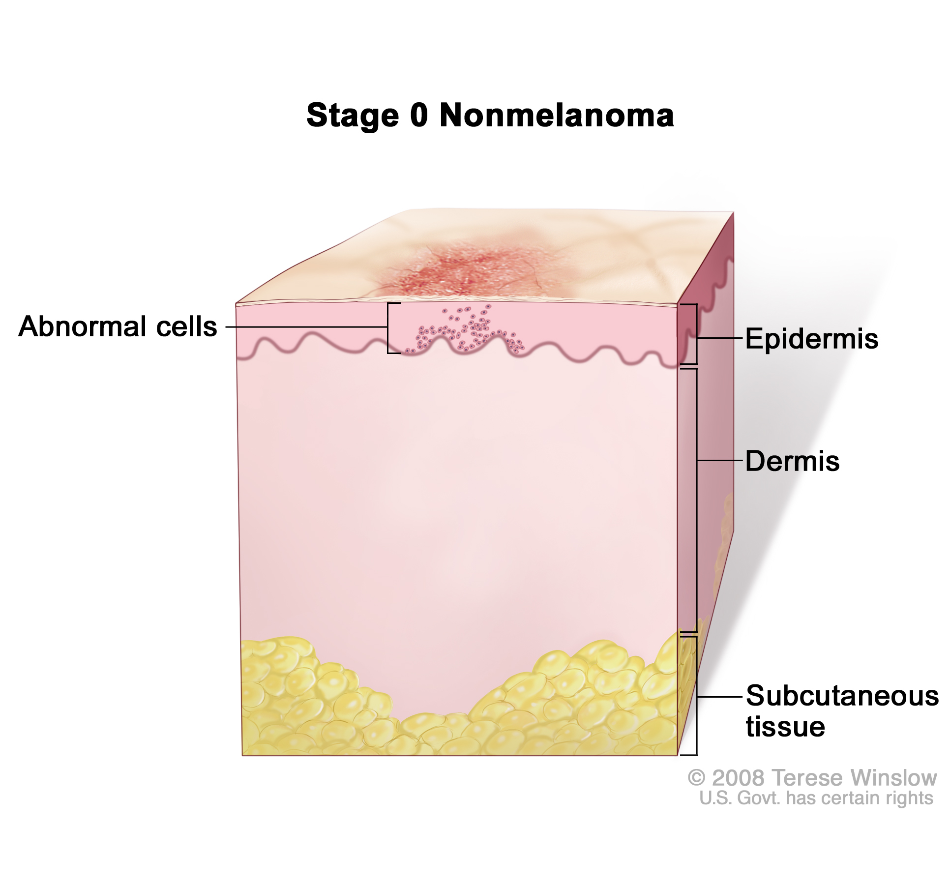 Stage 0 Nonmelanoma Skin Carcinoma In Situ On The Head And Neck Not