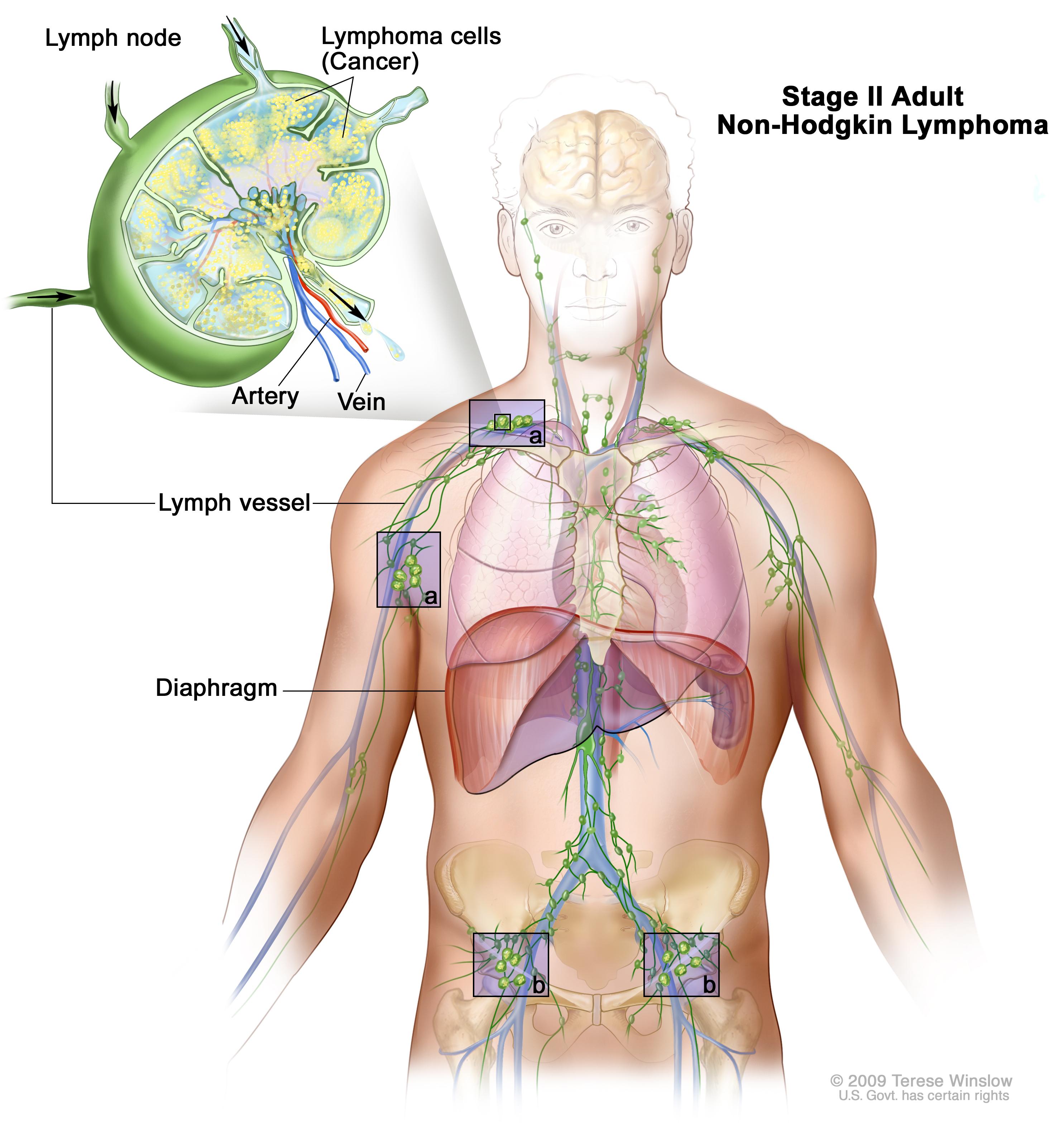 Adult Non Hodgkin Lymphoma Treatment Pdq Patients Siteman Cancer Center