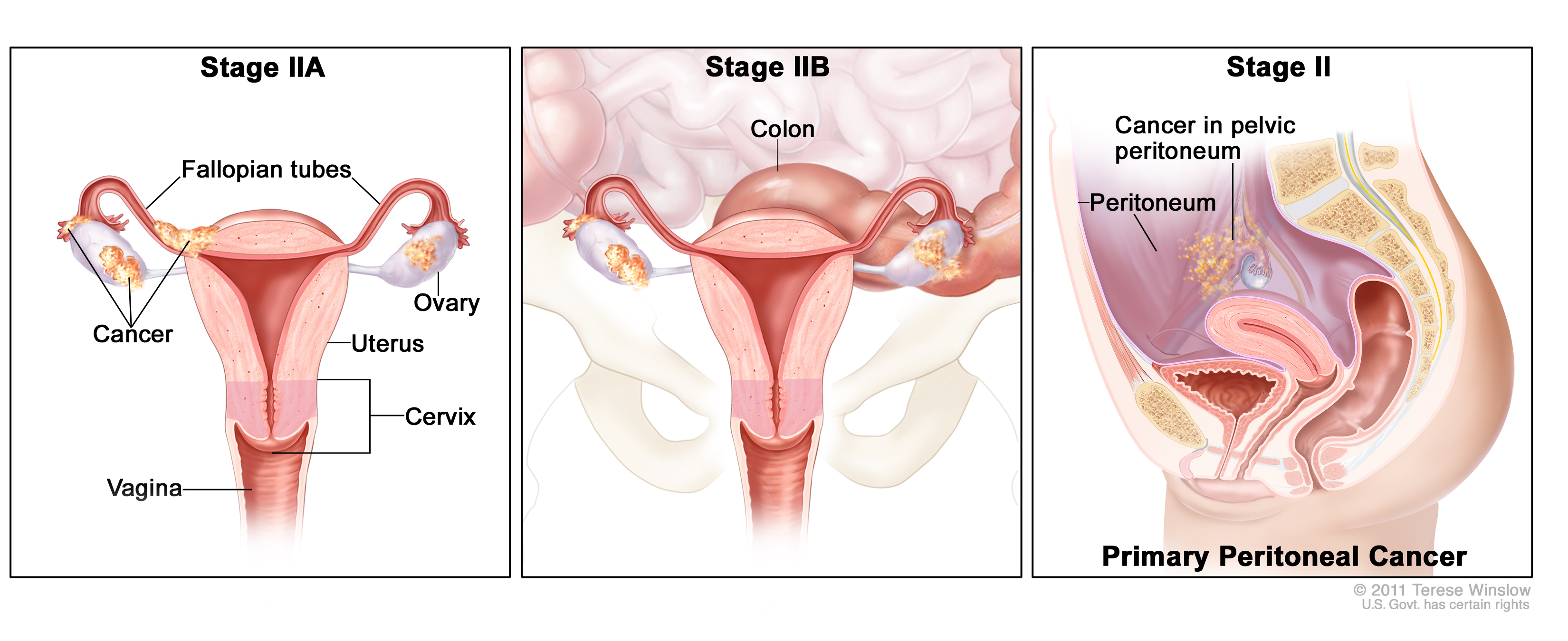 Stage Ii Ovarian Epithelial Fallopian Tube And Primary Peritoneal