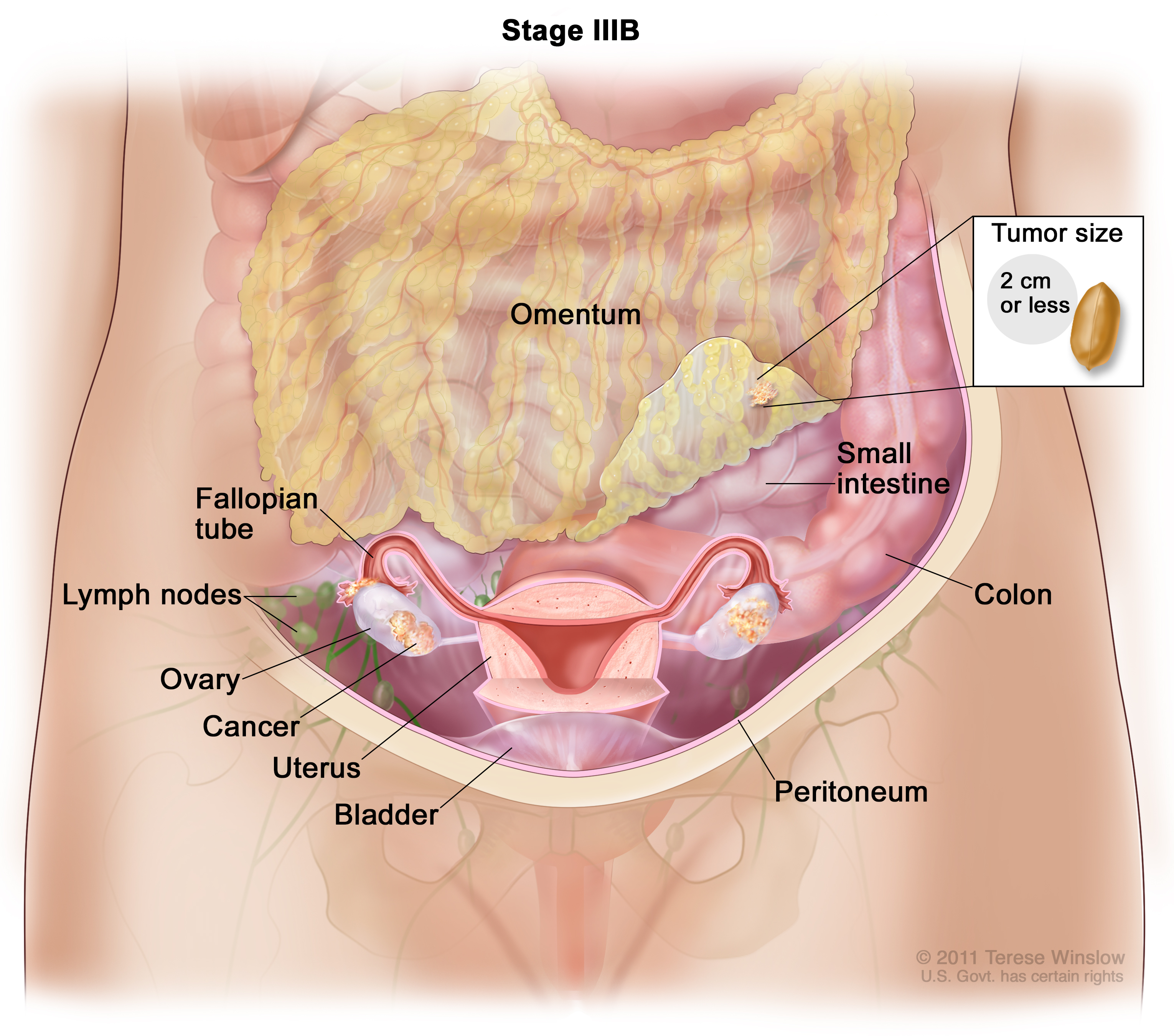 Ovarian Germ Cell Tumors Treatment Pdq Patients Siteman