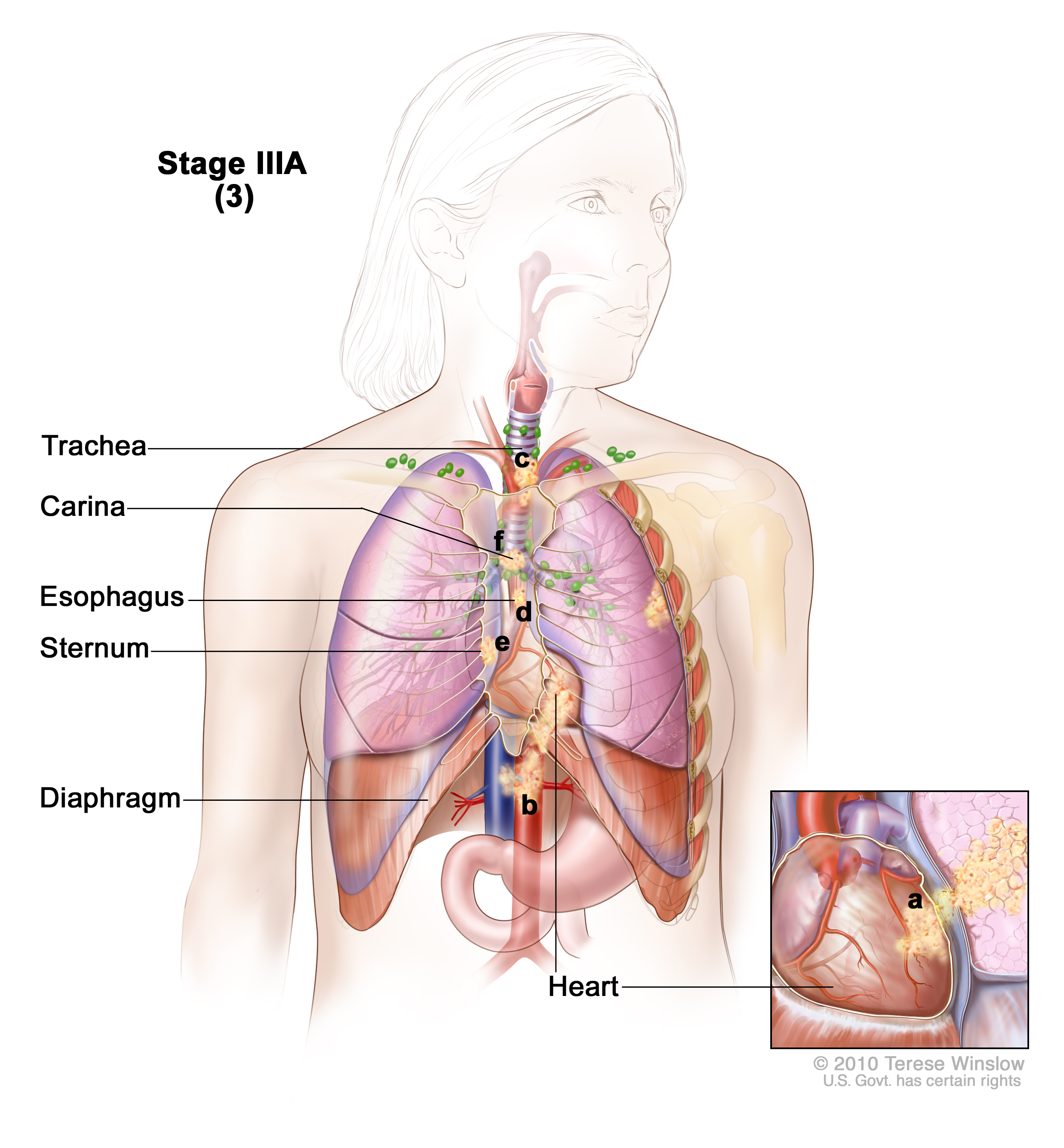 Stage Iiia Non Small Cell Lung Cancer Patient Siteman Cancer Center