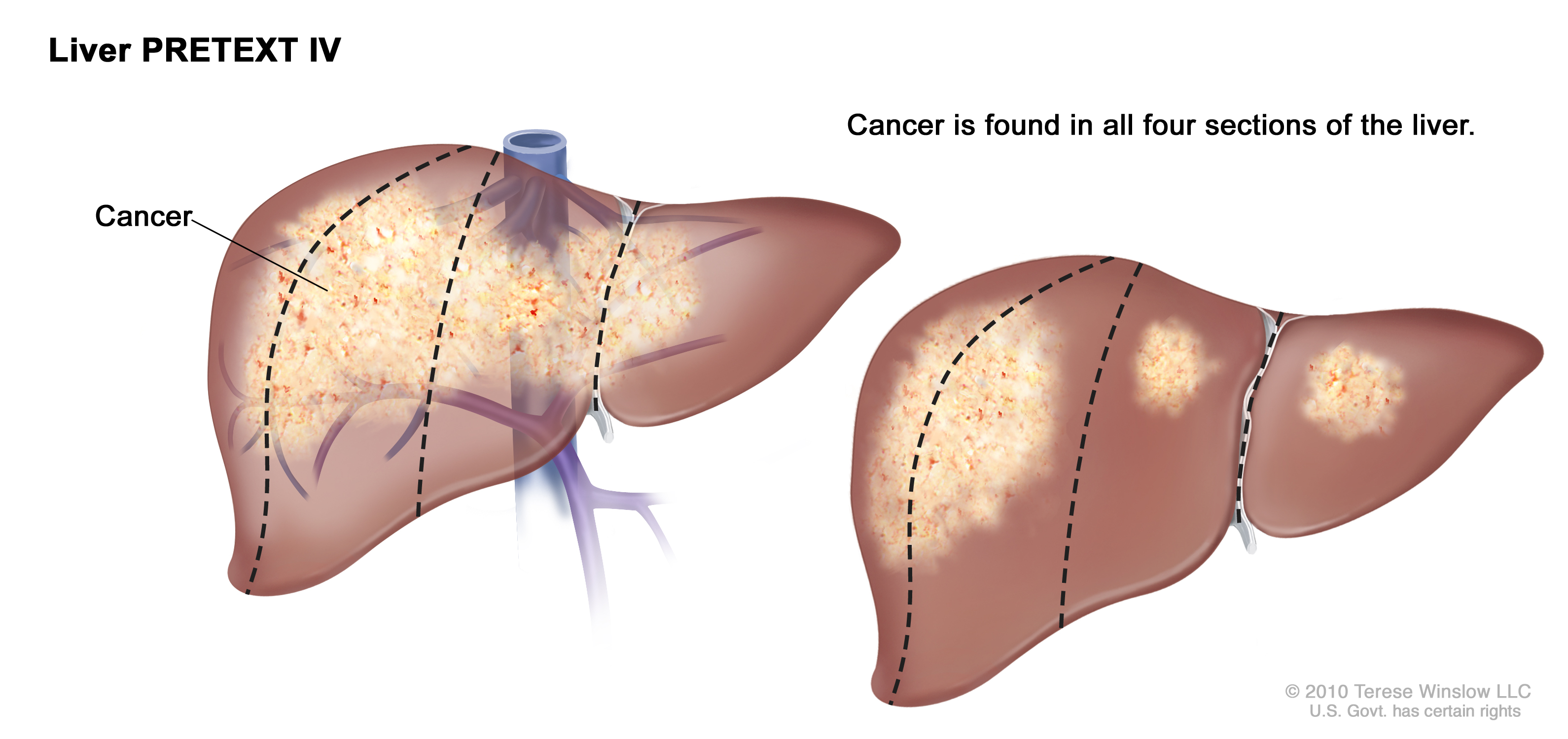 how liver cancer affects the liver essay