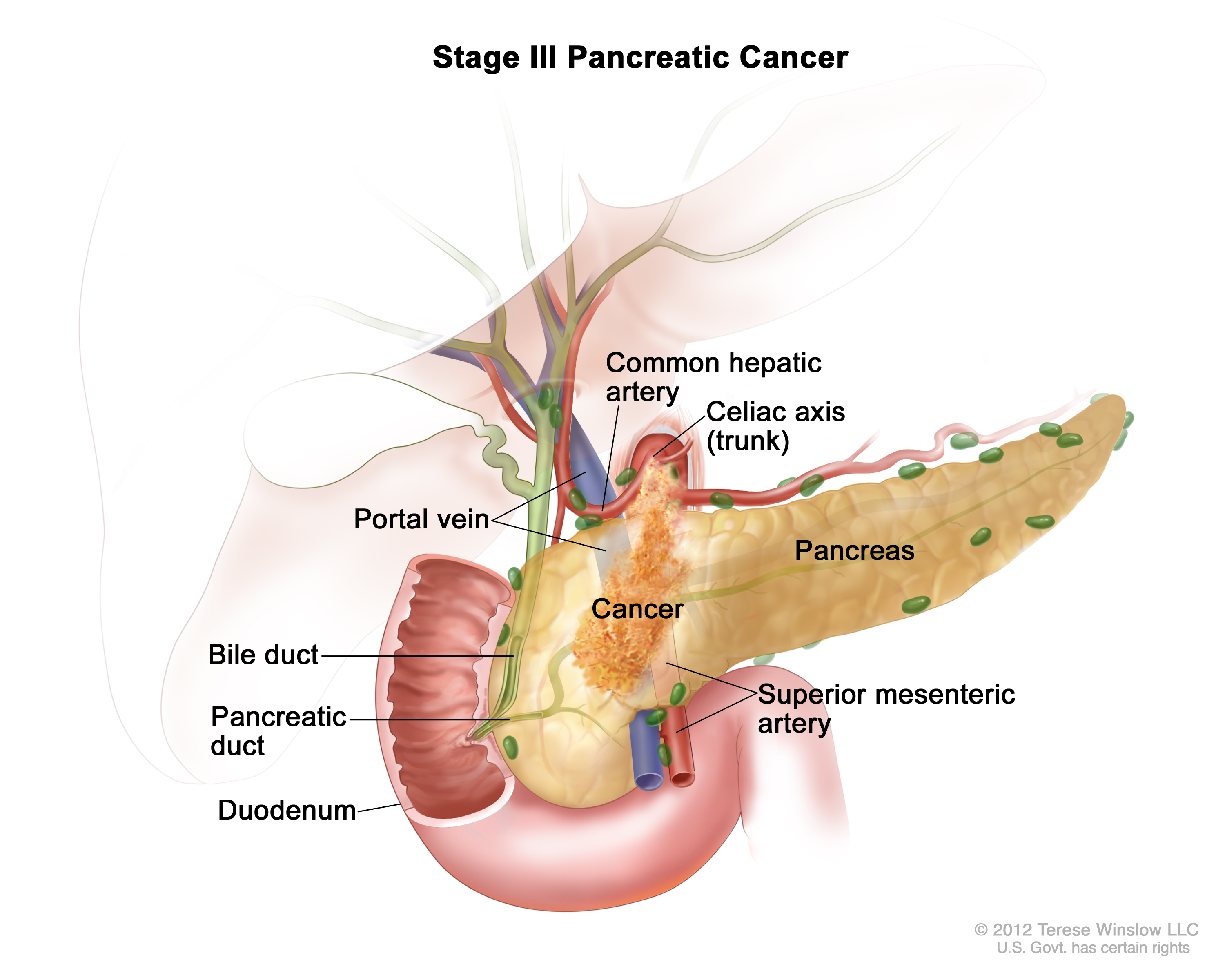 stage III pancreatic cancer (Patient) - Siteman Cancer Center