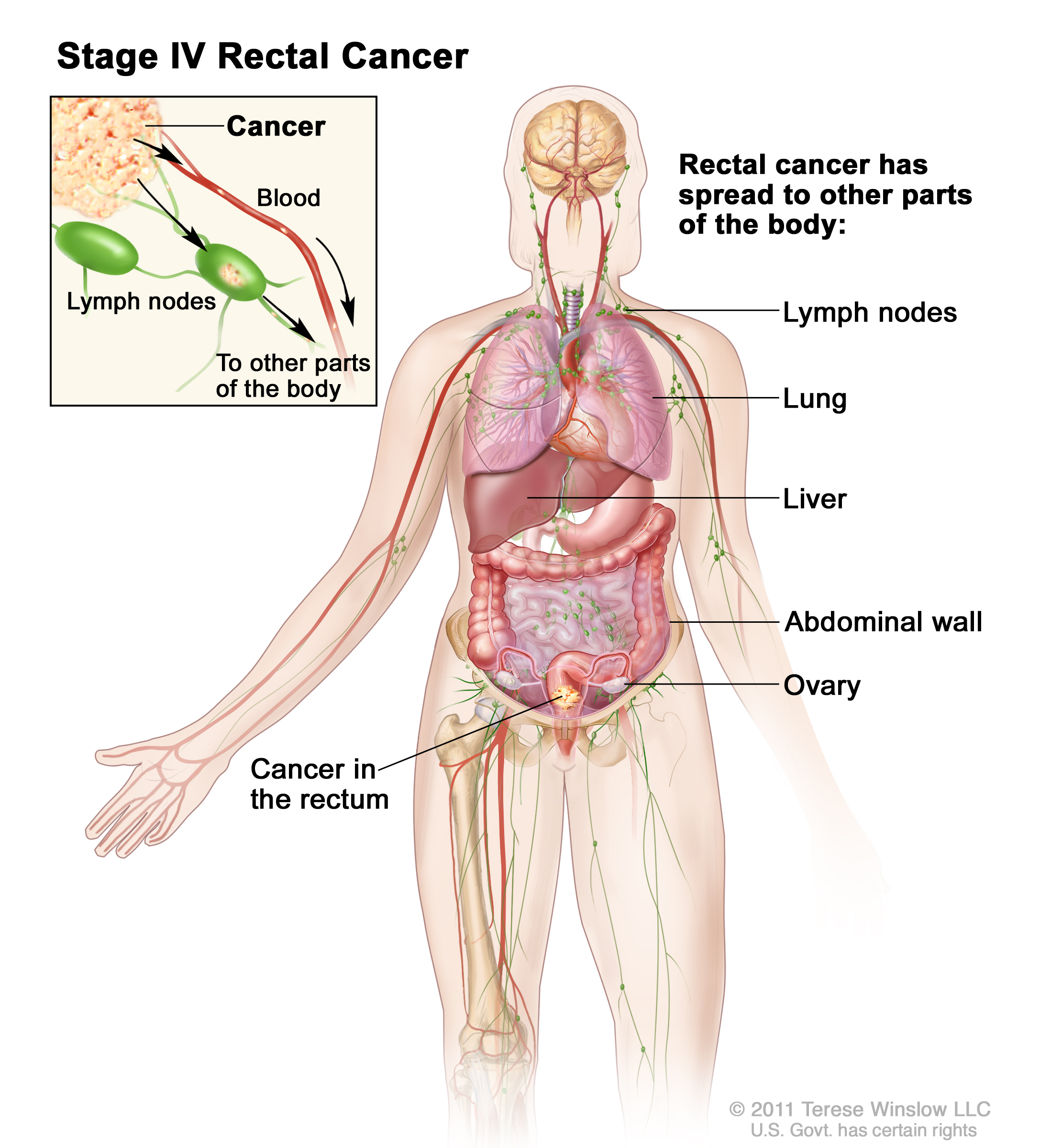 Rectal Cancer Treatment Pdq Health Professionals Siteman Muscle Diagram Human Body Additionally Kids Circulatory System Center