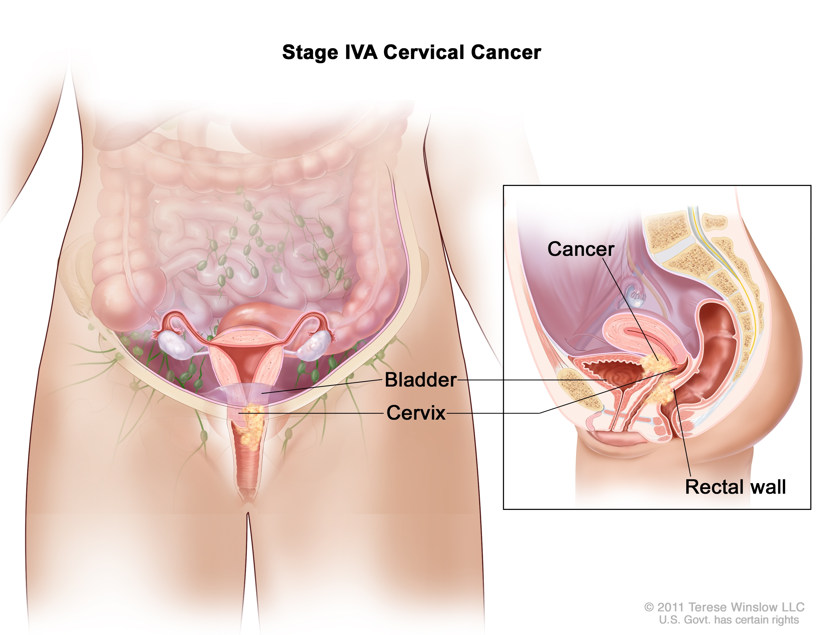 Cervical Cancer Treatment  PDQ     Patients   Siteman