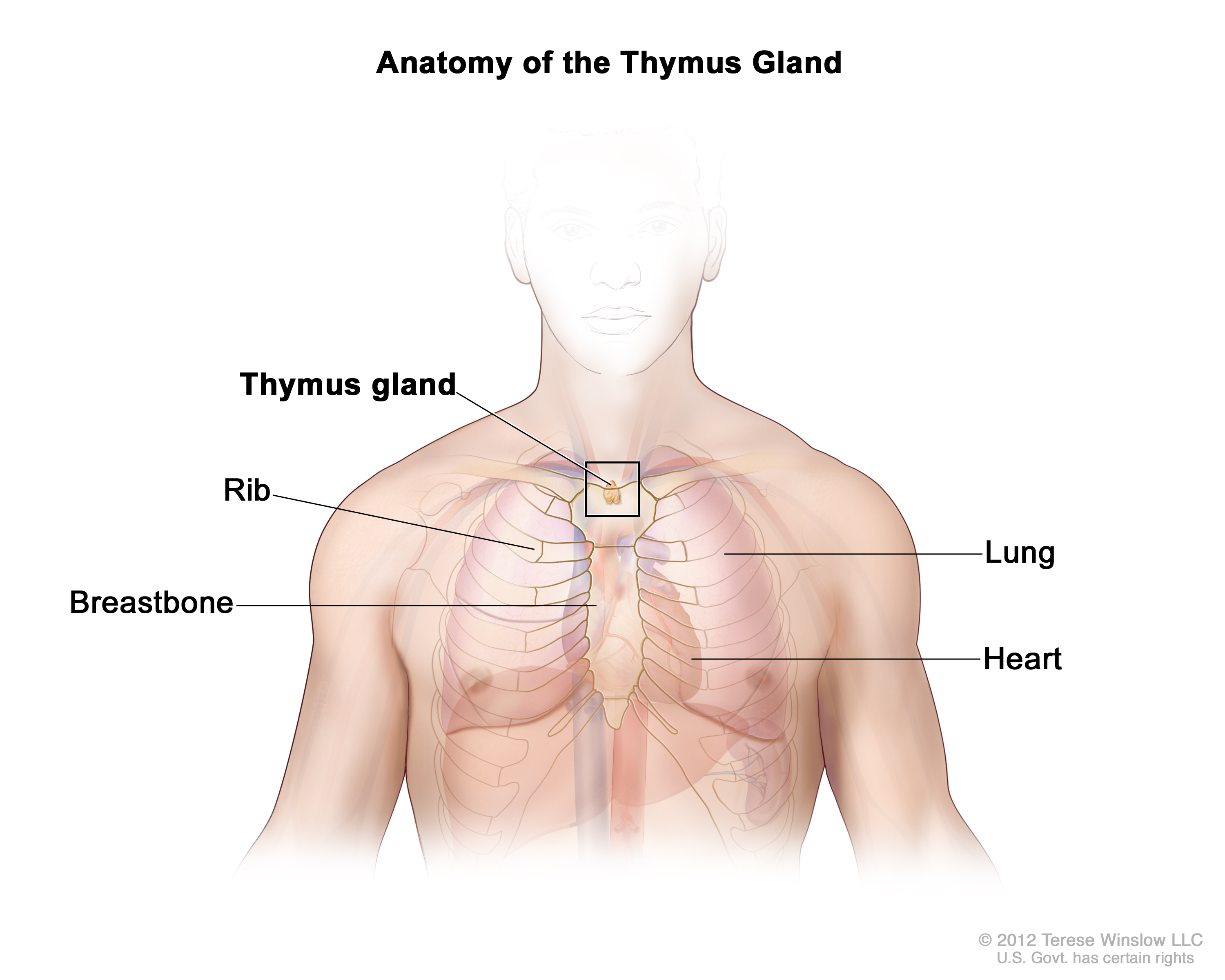 Thymoma And Thymic Carcinoma Treatment  Adult   Pdq