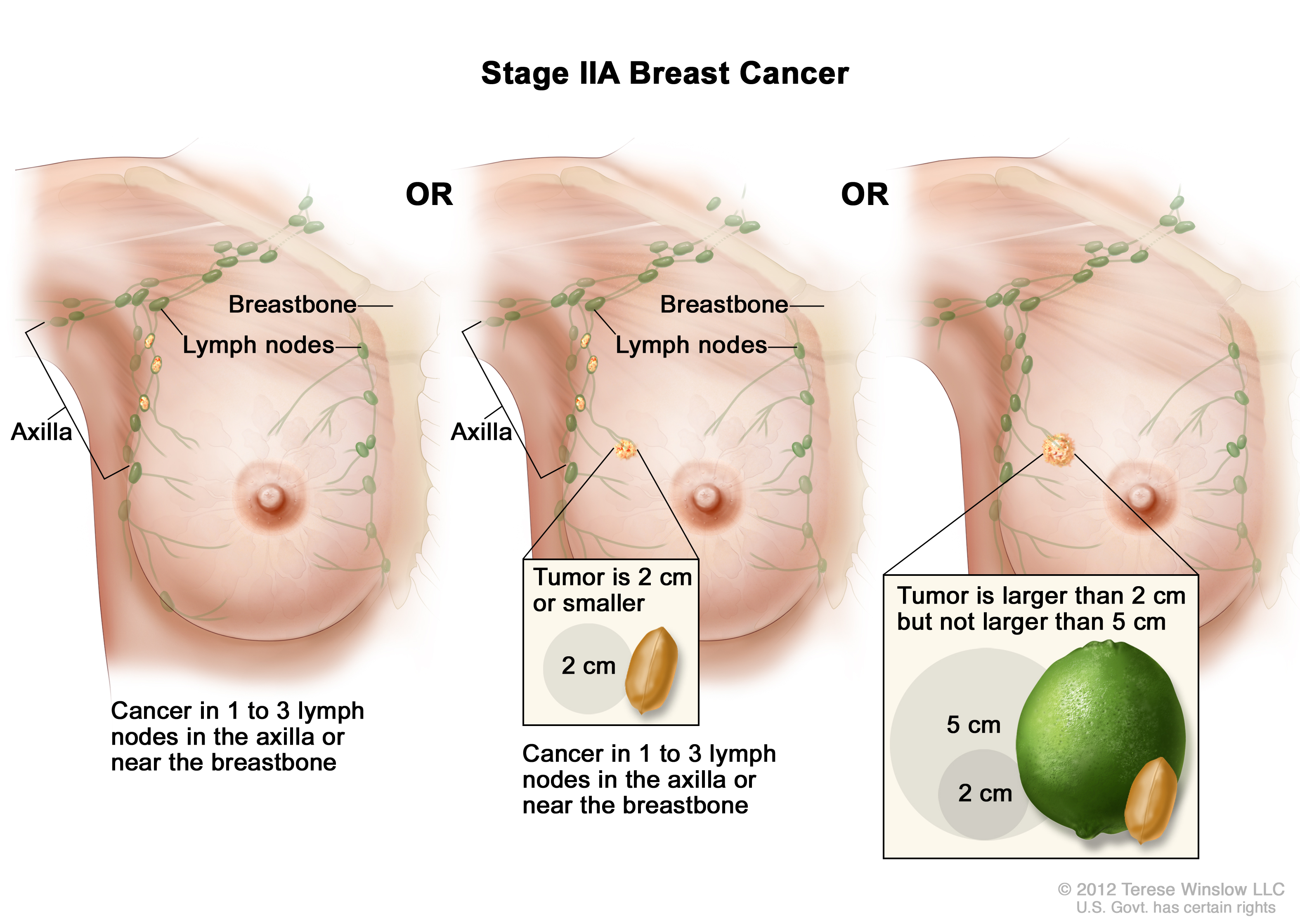 Breast Cancer Treatment During Pregnancy Pdq Patients Siteman Cancer Center
