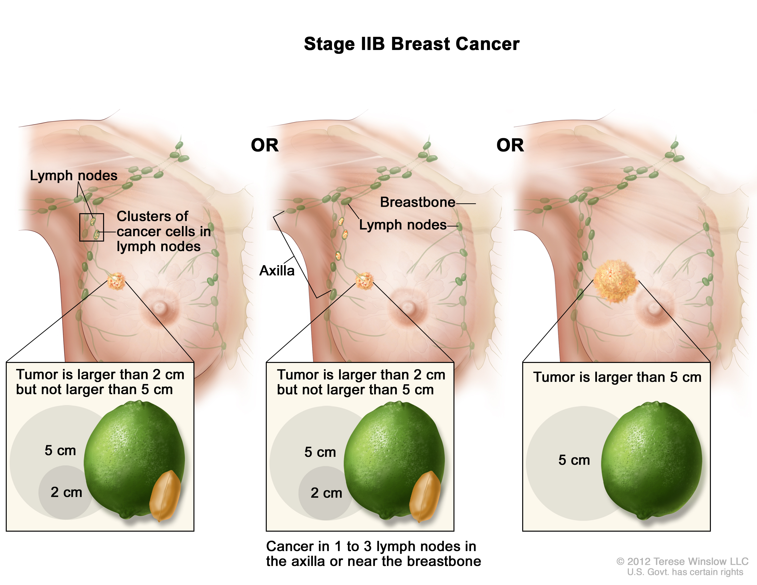 Caption: Stage IIB breast cancer. The tumor is larger than 2 centimeters  but not larger than 5 centimeters and small clusters of cancer cells (larger  than ...