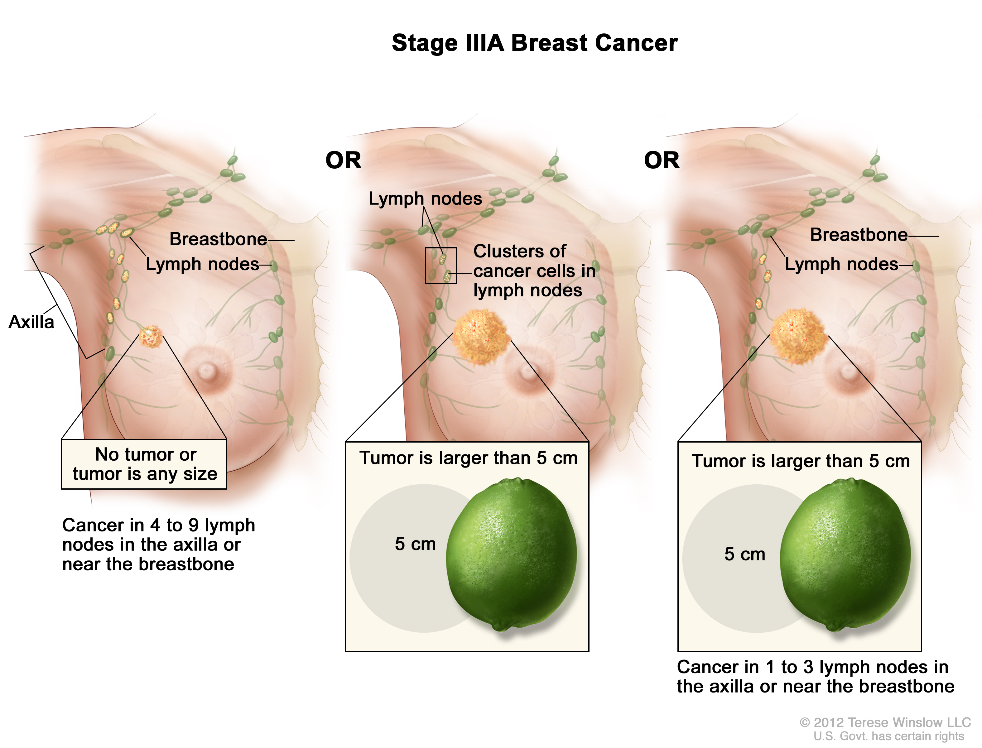 Stage Iii Breast Cancer Patient Siteman Cancer Center