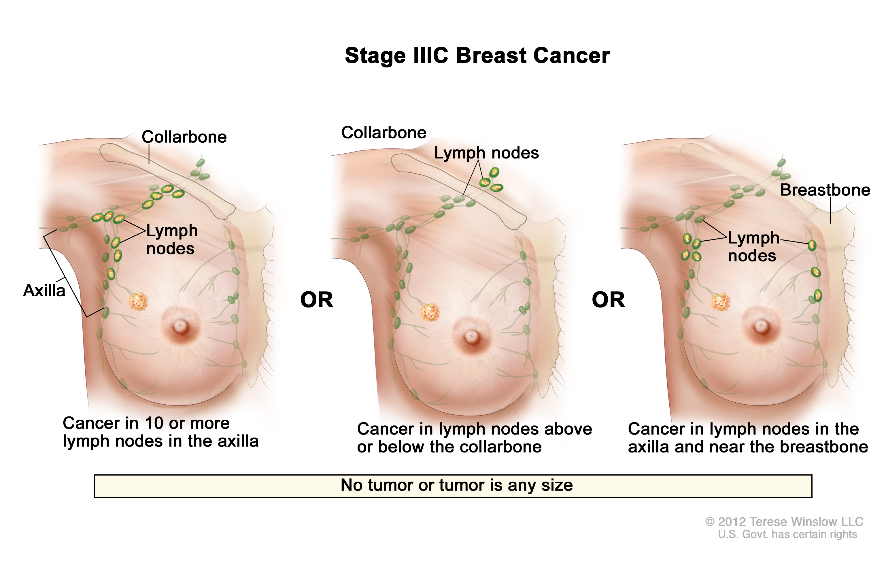 Stage Iiic Breast Cancer Patient Siteman Cancer Center