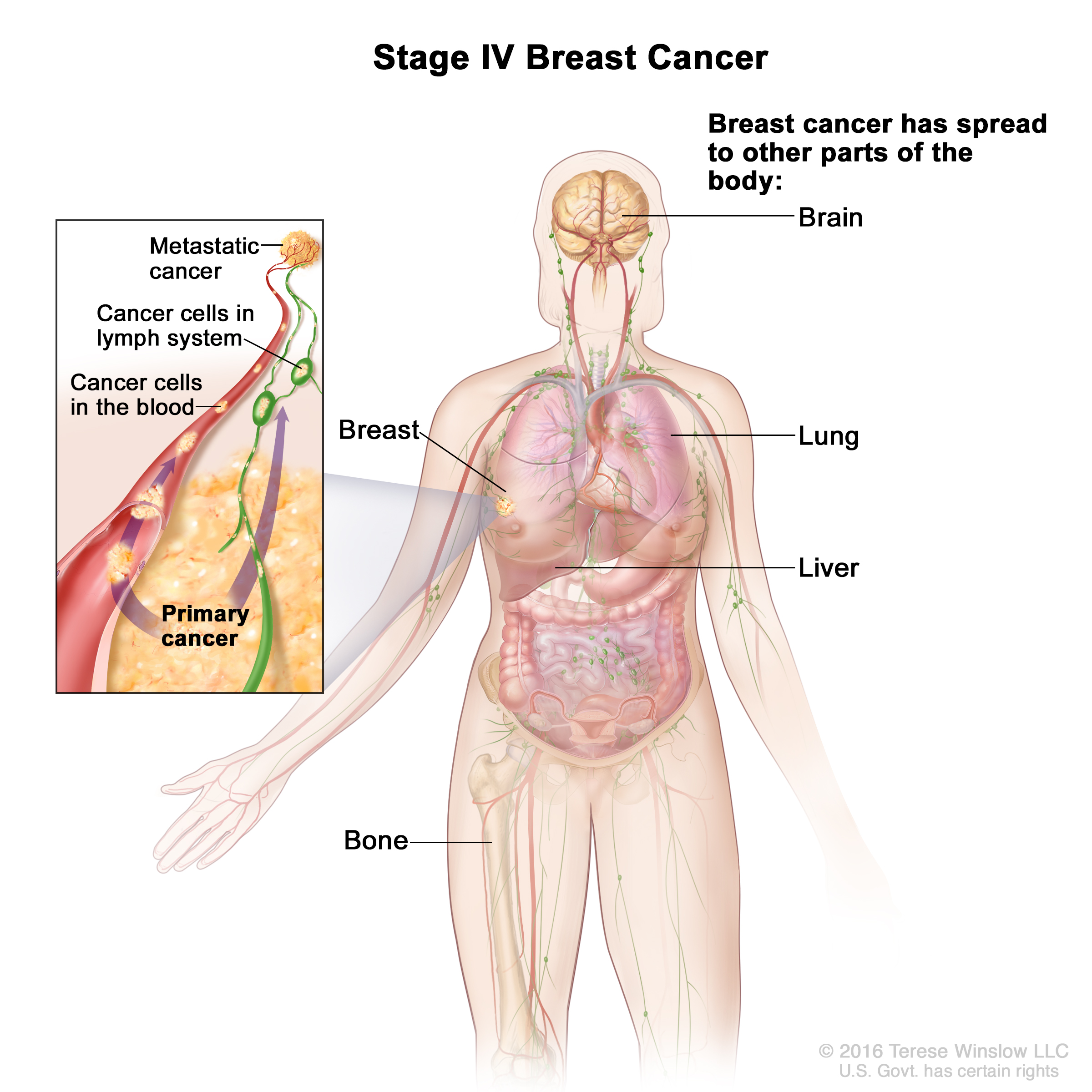 Breast Cancer Treatment During Pregnancy (PDQ®) (Patients) - Siteman ...