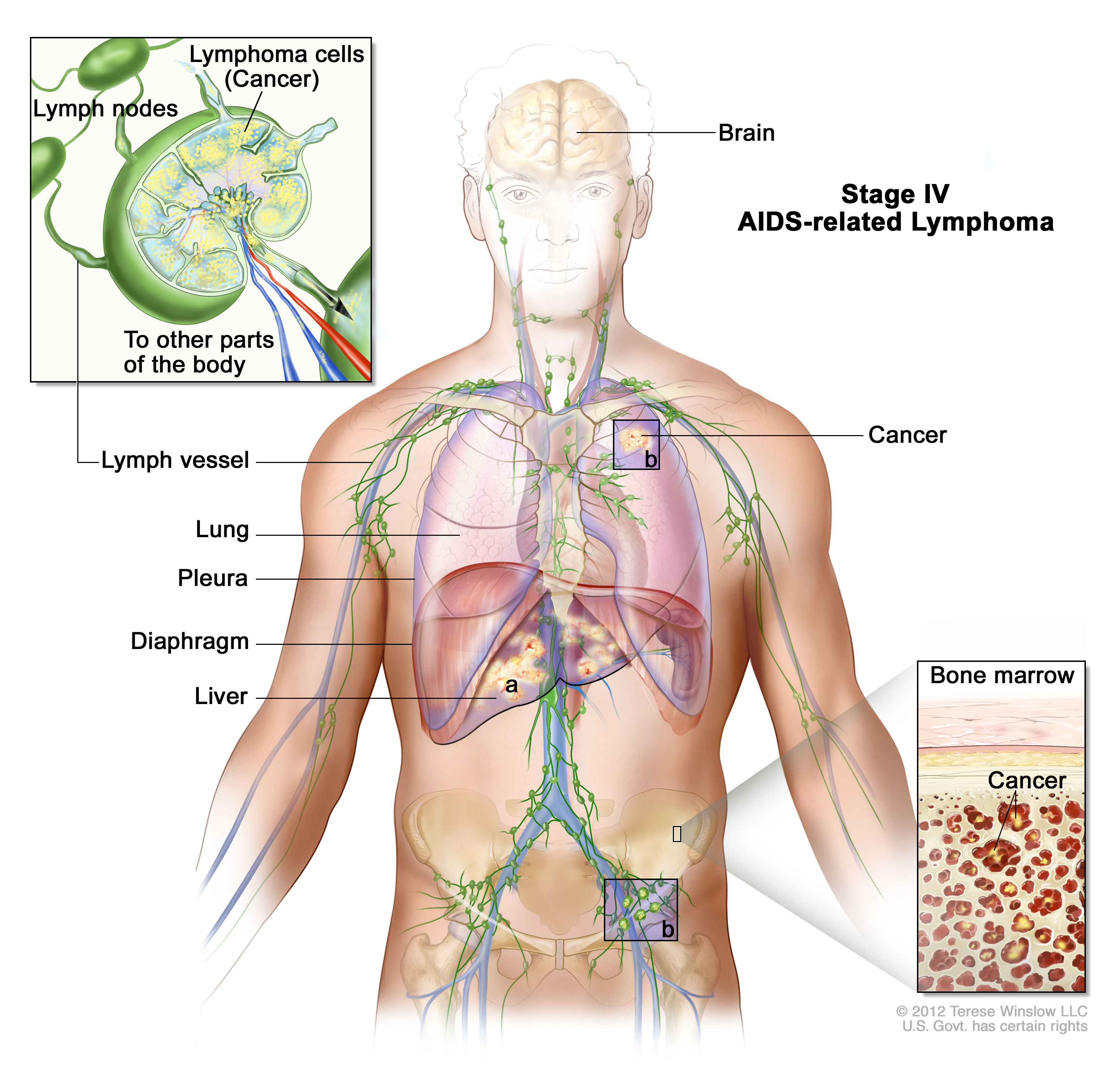 Stage Iv Aids Related Lymphoma Patient Siteman Cancer Center