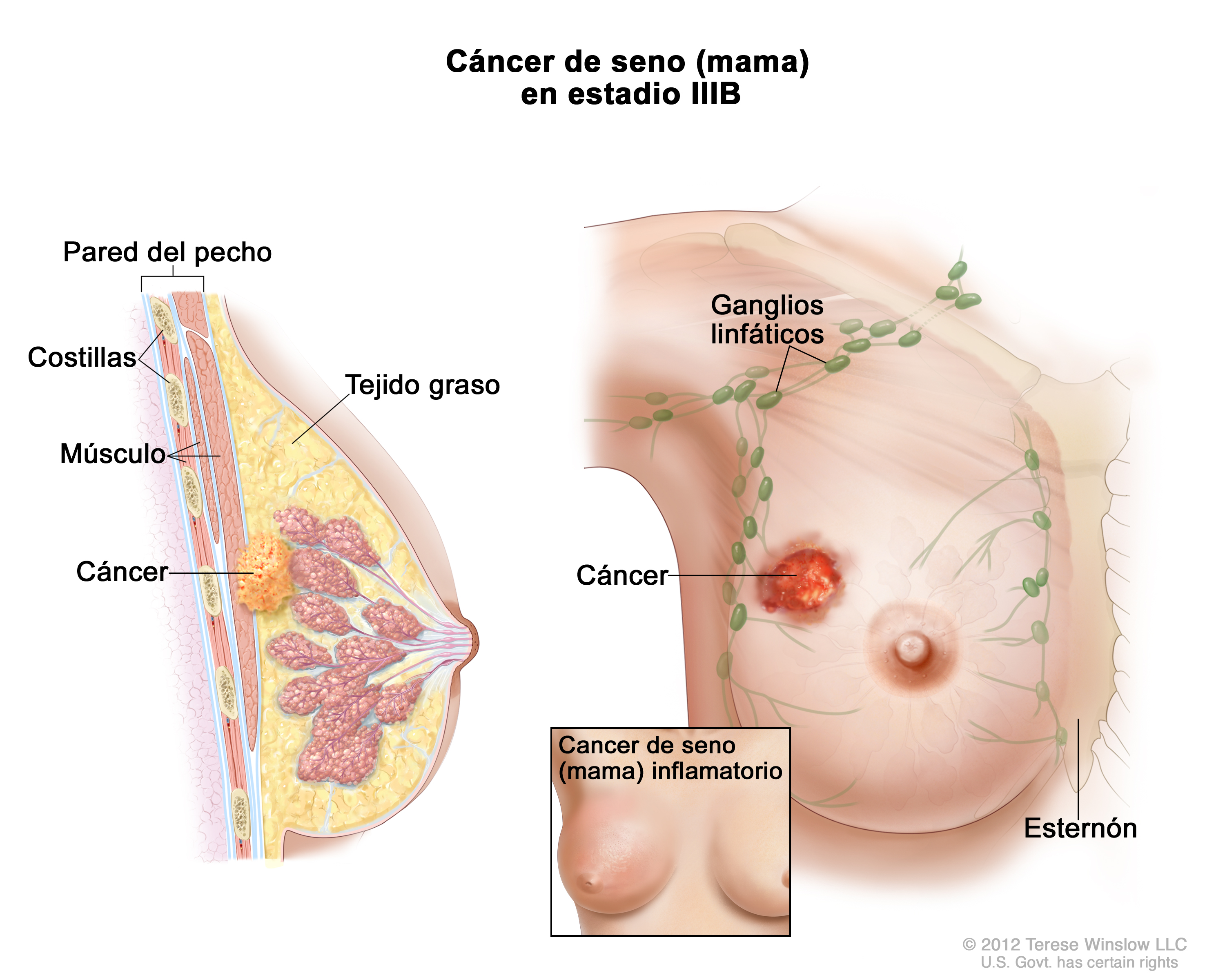 stage IIIB breast cancer (Patient) - Siteman Cancer Center