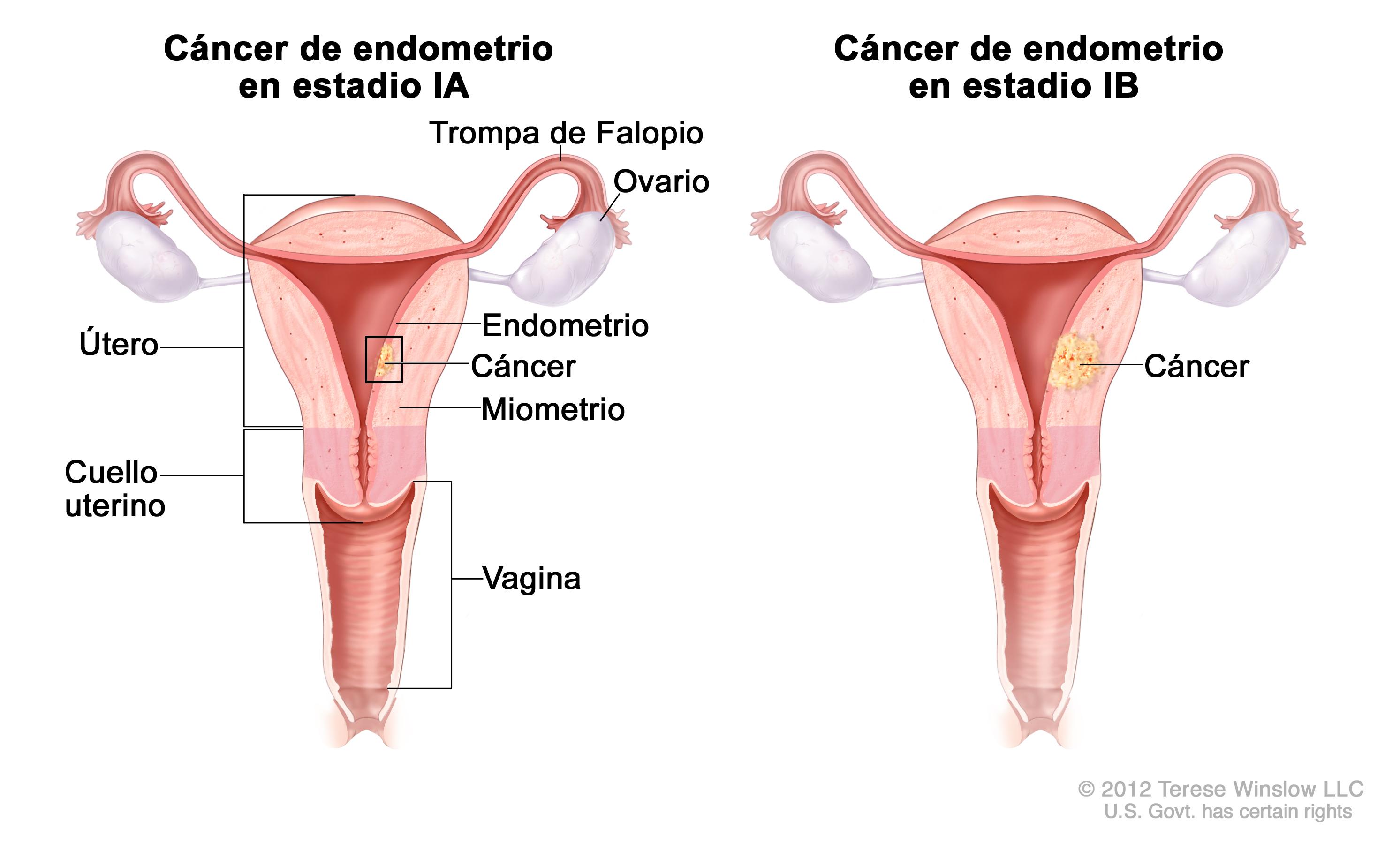 Cancer endometrial tratamiento. Endometrial cancer icd 10