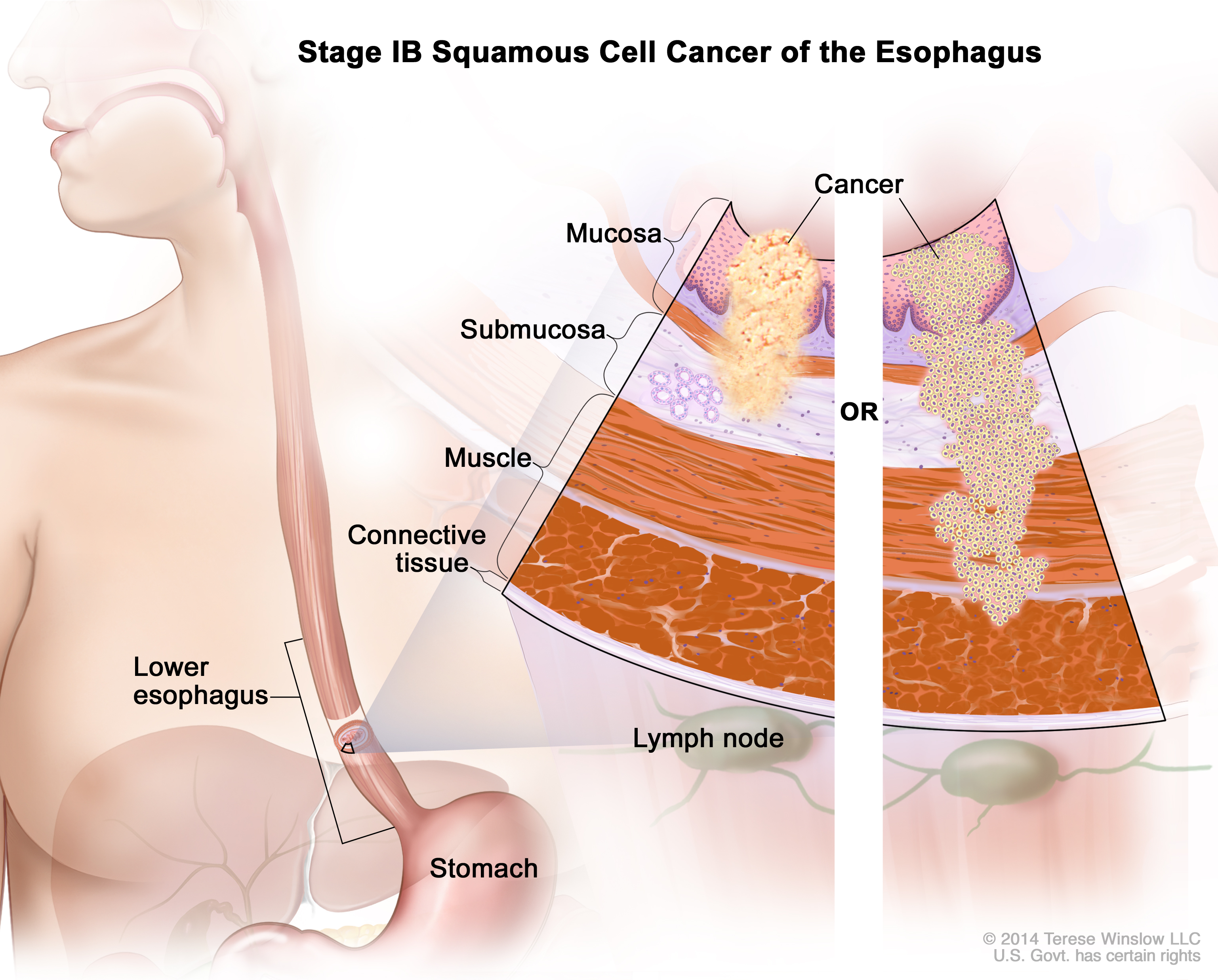 Esophageal Cancer Trea...