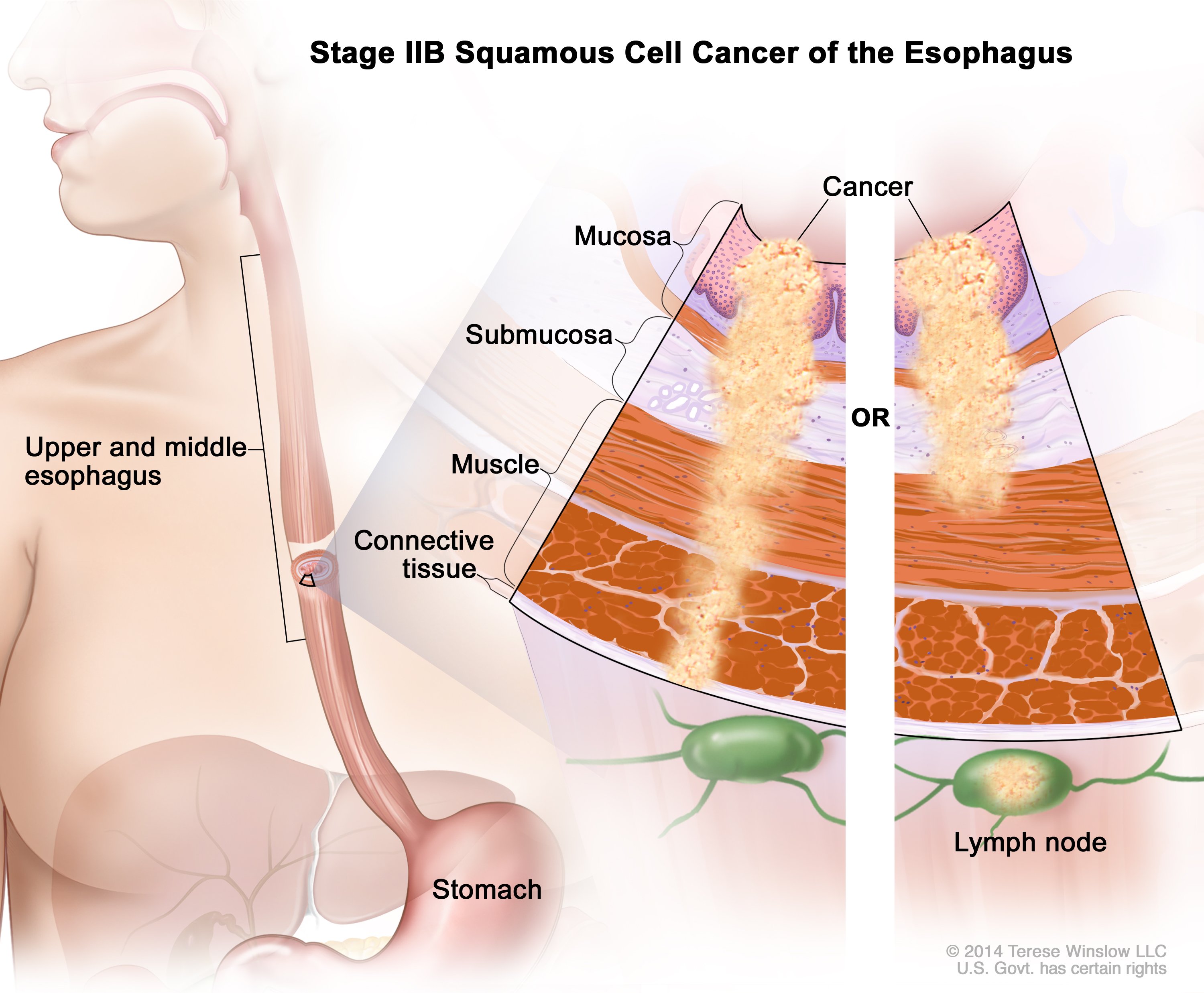 Stage Ii Esophageal Squamous Cell Carcinoma Patient Siteman