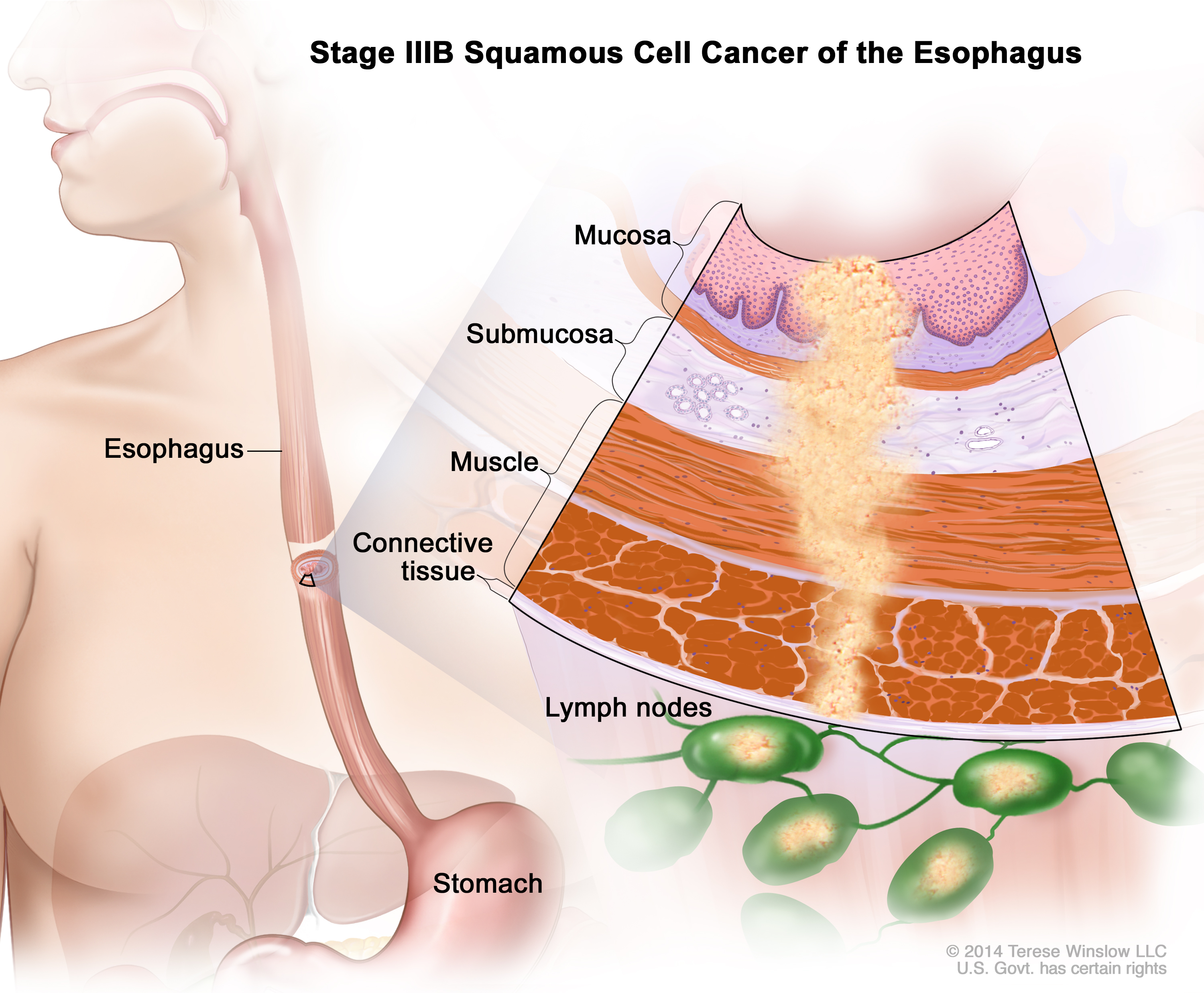 Stage Iii Esophageal Squamous Cell Carcinoma Patient Siteman