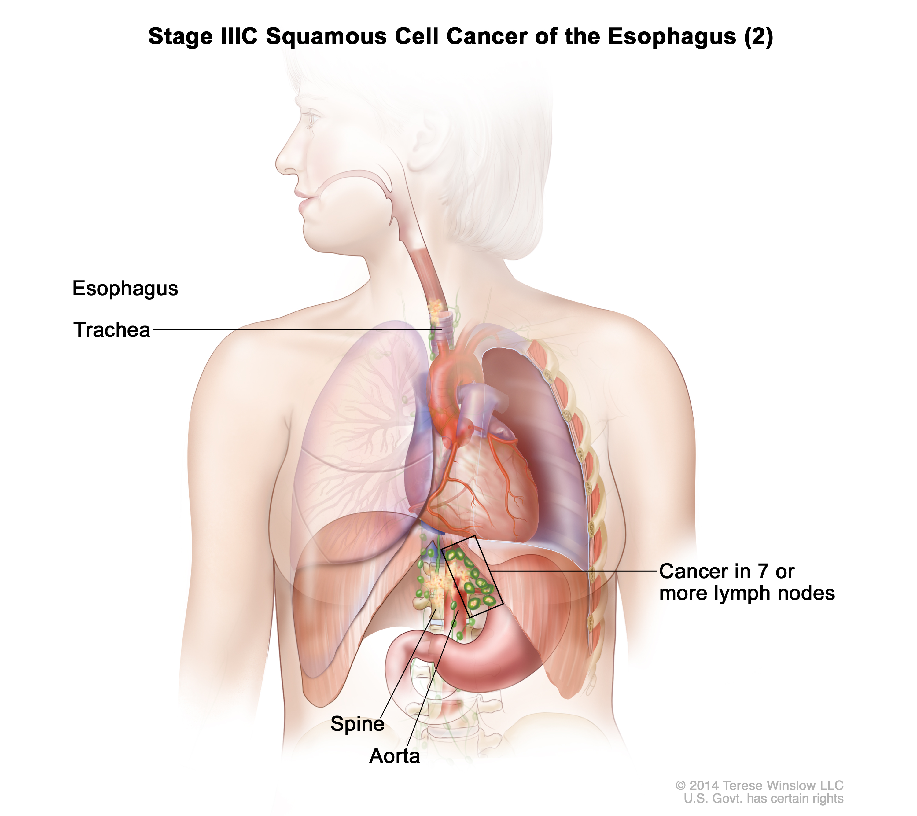 Esophageal Cancer Treatment Pdq Health Professionals Siteman