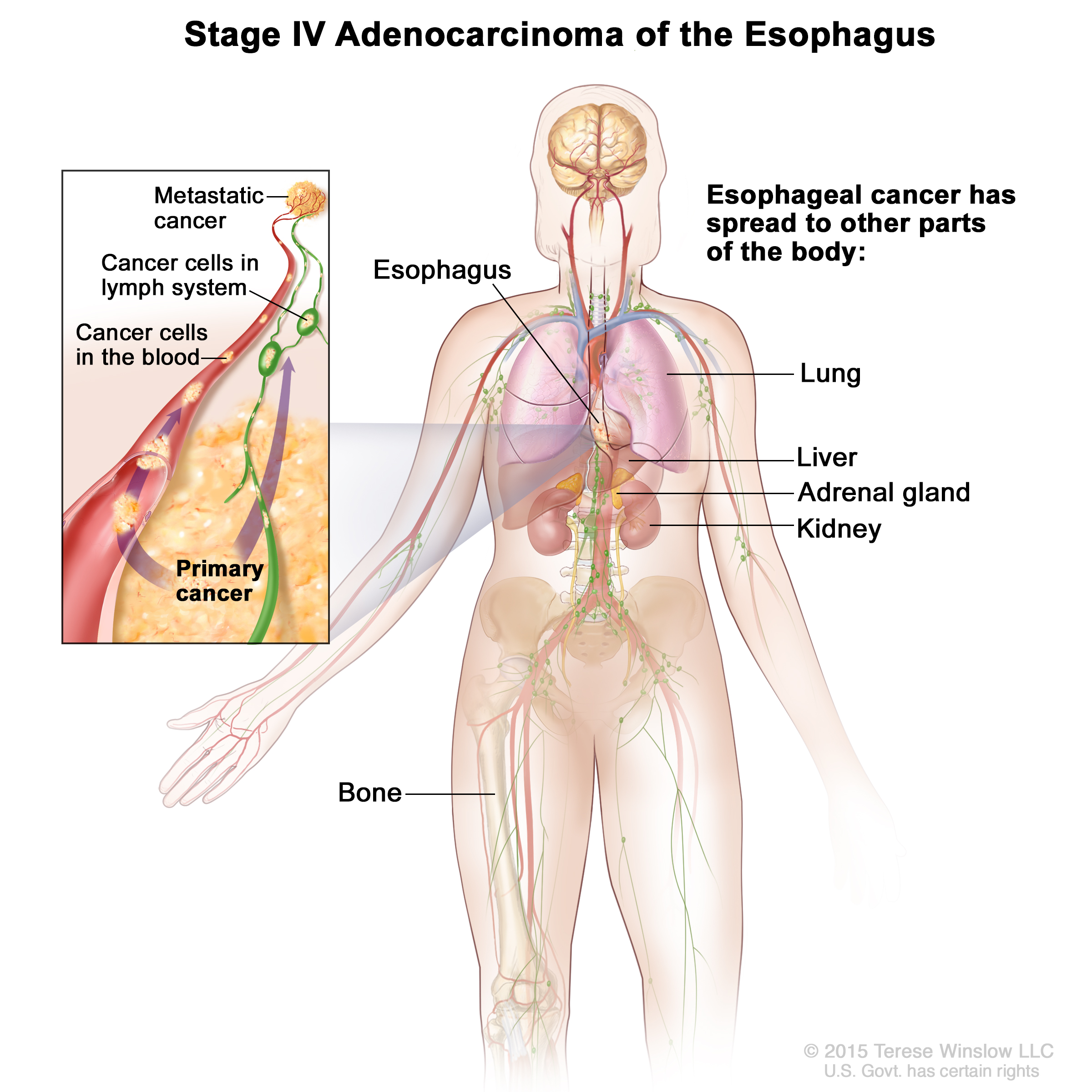 Esophageal Cancer Treatment Pdq Patients Siteman Center Gland Muscle And Body Part Is Affected Full Diagram In Stage Iv Has Spread To Other Parts Of The