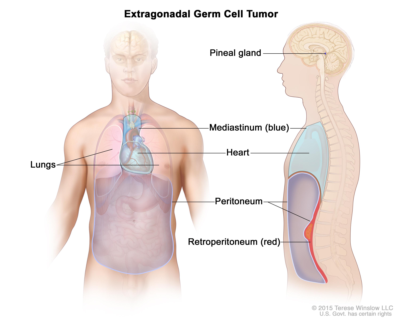 Extragonadal Germ Cell Tumor Patient Siteman Cancer Center