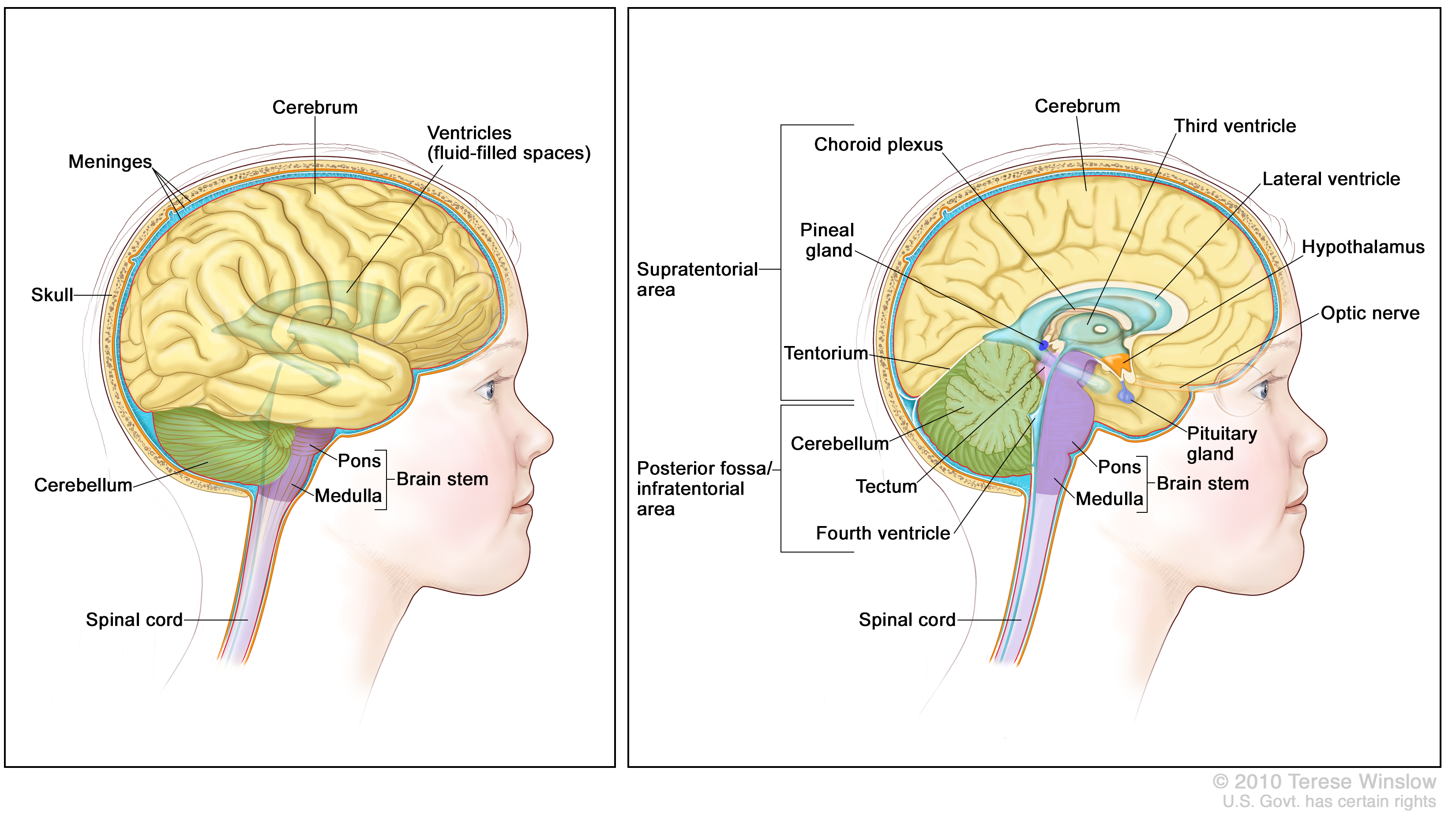 Childhood Central Nervous System Atypical Teratoidrhabdoid Tumor